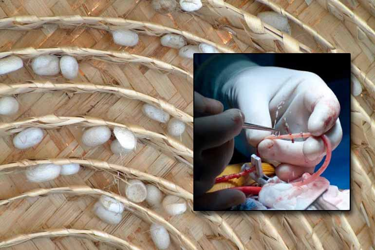 রেশম দিয়ে কৃত্রিম ধমনি: যুগান্তকারী আবিষ্কার বাঙালি চিকিৎসক-গবেষকদের