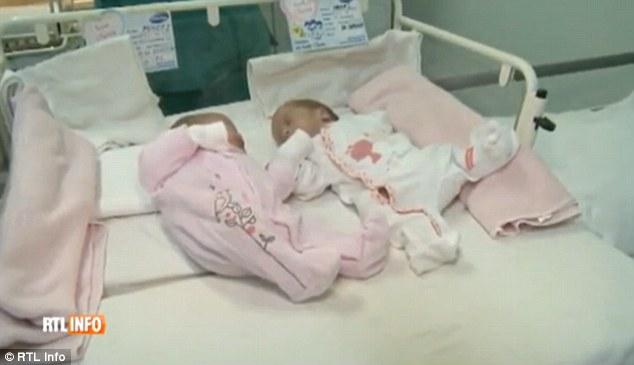 গর্ভাশয় দুটি,তাই এক সন্তান জন্মের ১ মাসের মধ্যেই ফের যমজ প্রসব করলেন মহিলা